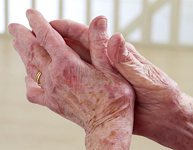 Исследование показывает, что псориатический артрит может быть активирован одним и тем же триггером у разных пациентов