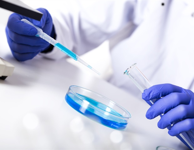 Липкие сети ДНК могут вызывать повреждение тканей, связанное с тяжелыми инфекциями COVID-19