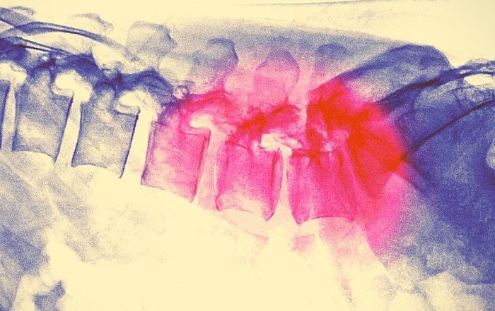Наночастицы исцеляют травмы спинного мозга