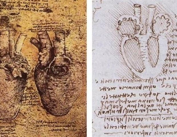 Нитевидные мышечные волокна в сердце связаны с риском сердечной недостаточности