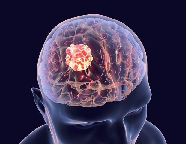 Новый препарат, нацеленный на генетическую слабость, может стать первым средством лечения рака мозга у детей
