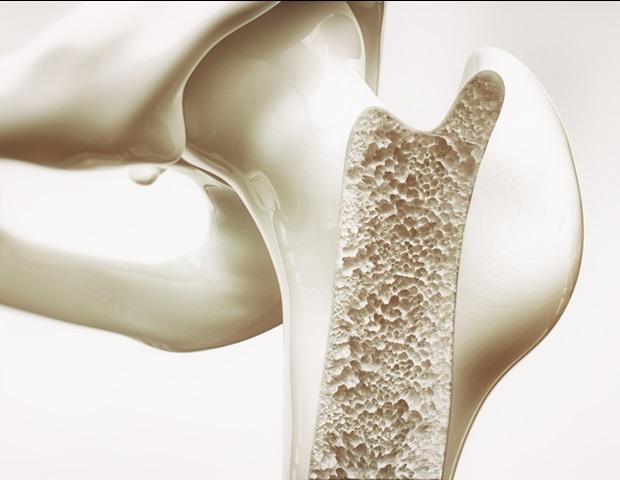 Смертельно наследственные заболевания крови, вылеченные с помощью трансплантации костного мозга