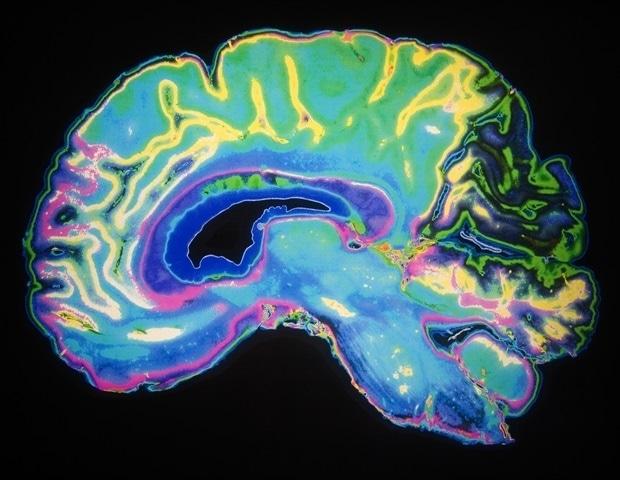 UA получает грант NIH в размере 37,5 млн. Долл. США для исследования потенциальной регенеративной терапии болезни Альцгеймера