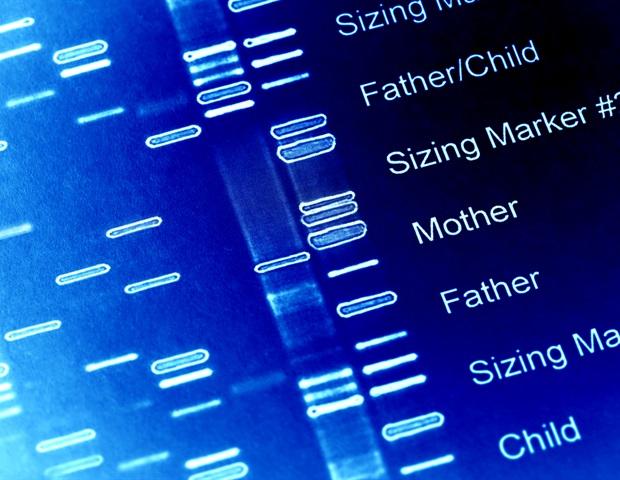 Ученые проследили генетические корни уродства Киари 1